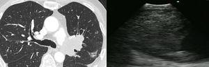 Angiosarcoma: a CT scan of the chest showing lobulated low attenuation mass situated 8mm distal to the bifurcation of the left pulmonary artery measuring 45×62×33mm, with its corresponding EBUS image.