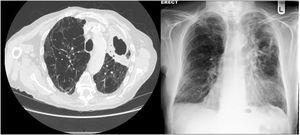 An example of cavitary non-tuberculous mycobacterial disease. The patient has COPD and severe emphysema is evident on the CT scan. In the left upper lobe there is a thick walled cavity. Sputum samples were persistently positive for M. avium.
