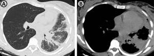 (A and B) Axial thoracic computed tomography images demonstrate the presence of a pulmonary mass in the left lower lobe, with perihilar localization, conditioning partial atelectasis of this lobe. There is also seen interlobular septal thickening, suggestive of lymphangitic carcinomatosis.