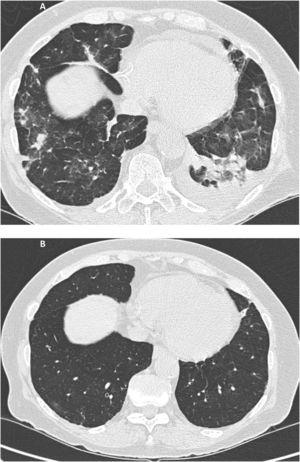 A Multiple small consolidations in both lungs with areas of ground glass opacification and small bilateral pleural effusion of left predominance. Fig. 1B. Complete resolution of the extensive pulmonary disease with consolidative component and ground glass, as well as the small bilateral pleural effusion.