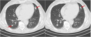 Chest computed tomography showing multiple pulmonary nodules (arrows) some of them with small cavitation areas, before corticosteroid treatment.