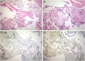 Bone biopsy. Gorham disease composed of numerous vascular spaces lined by attenuated endothelium. (A) Hematoxylin–eosin (10×). (B) Hematoxylin–eosin (20×). (C) Immunohistochemistry stain for D2-40 in endothelial cell of lymphatic vessels (10×). (D) Immunohistochemistry stain for CD31 in endothelial cells of capillary vessels (10×).