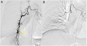 Description. Angiography preprocedure (A) shows hypertrophy of right bronchial artery and the presence of a fistula between bronchial artery and pulmonary artery. Angiography postprocedure (B) shows the absence of flood to pulmonary artery.