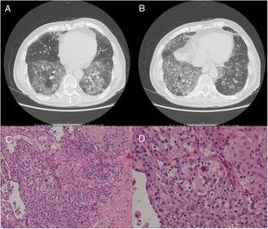 (Panels A and B) CT scan images showing predominantly basal, bilateral, peripheral ground-glass opacities with associated reticular abnormalities consistent with a non-specific interstitial pneumonia (NSIP) radiological pattern. (Panels C and D) Histological appearance at different magnifications of transbronchial biopsies showing areas of organized fibrosis with fibrinous exudates and significant amount of inflammatory cells and with no evidence of malignant cells.