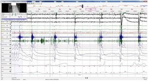 Baseline polysomnography: This figure evidences nocturnal characteristic bradypnea without effort in the chest/abdomen or oxygen desaturation. Associated electroencephalographic (EEG) arousals during stage REM. EEG channels (from top to bottom): C4/A1, C3/A2, O2/A1, EOG1/A1, EOG2/A1, ECG, EMG, snore, flow, thermistor, chest band, abdominal band, sum of band readings, phase angle, oxygen saturation, heart rate and position.