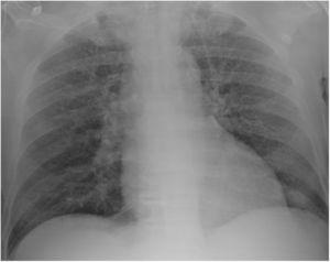 Chest radiograph on admission showing a diffuse opacities and nodules.
