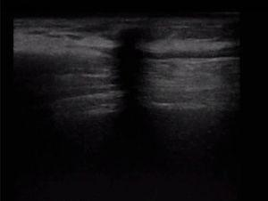 Ultrasound image of the local area showing a hypoechogenic spot in the medial tract of the previous tunnelling extending from the subcutaneous tissue down due to the acoustic shadow from the retained plug in the subcutaneous space.