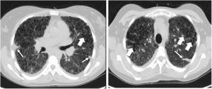 Pre-transplant computed tomography of the chest in lung window showing a diffuse change in the pulmonary architecture with multiples cists, some of them confluent with thin walls (large arrows) in relation with Langerhans cell histiocytosis. It is also described a septal thickening due to confluence of fibrotic areas with formation of some nodules (thin arrow).