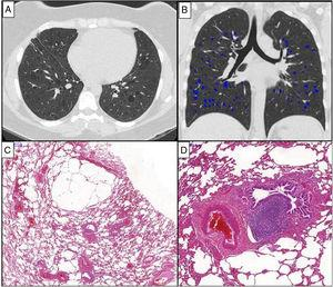 Chest HRCT scans (A and B) and histopathological findings (C and D) of a 38-year-old woman with chronic cellular bronchiolitis and diffuse cystic lung disease. (A) Axial CT image shows diffuse, regular, and thin-walled pulmonary cysts. The quantification of cystic lung lesions is depicted in blue (B). The percentage of the total lung area occupied with cysts is 2.75%. The photomicrographies (C and D) show mild inflammatory mononuclear cells infiltrating some of the bronchiolar walls. There are cystic alveolar changes in the nearby parenchyma tissue. Lymphoid follicles with reactive germinal centers are shown (hematoxylin and eosin stain) (D). Magnifications: C. ×13; D. ×70.