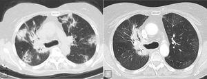 A. CT scan (lung window) shows multiple peripheral poorly defined areas of focal consolidation, very suggestive or organizing penumonia. B. CT scan (lung window), three month later shows resolution of peripheral areas of focal consolidation, but persistence of parahilar consolidation because of radiation fibrosis. Note the bronchiectasis and volume loss and the sharp demarcation between normal lung tissue and areas of fibrosis.