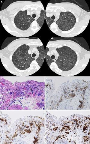 (A) Chest high-resolution computed tomography revealing diffuse ground glass opacities and nodules with centrilobular augmentation in the bilateral lungs. (B) Microphotographs of the transbronchial lung biopsy specimen. Atypical lymphocytes are seen in the intravascular space of capillary blood vessels. Immunochemical staining revealing that these cells were positive for CD20 (C), CD79α (D), and Ki-67 (E).