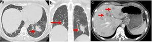 (a) Chest axial CT; (b) non-contrasting coronal CT shows left lower lung mass (arrow) and multiple small diffuse round nodules (long arrow) at diagnosis; (c) contrast axial abdominal CT shows multiple hypo-enhanced solid liver nodules according to diffuse liver metastases (arrows) following hepatic progression.
