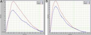 A. Forced expiratory flow-volume curves on breathing air (blue curve) and the mixture 80% He and 20% O2 (red curve) in a control subject. B. Same as A of a typical OSAHS patient. Green lines show the point at where the two curves coincide (VisoV˙).