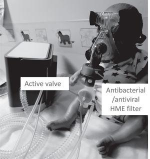 Picture shows a child mannequin wearing a non–vented nasal mask with the active valve circuit set up. Note the position of the HME and active valve in the circuit. The same set-up can be used for a face mask or a total face mask.
