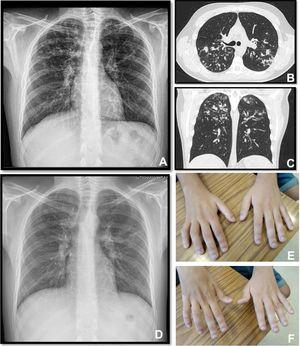 Panel A, B and C: Chest x-ray and thoracic computed tomography showed cylindrical bronchiectasis with wall thickening associated with a tree-in-bud micronodular pattern; Panel D: Chest x-ray with radiological improvement, after CF therapy was initiated; Panel E-F: severe weakness of upper limbs (worse in the upper right limb with muscle atrophy).