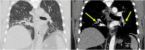 Computed Tomography Pulmonary Angiography (CTPA) described signs of Pulmonary Artery Thrombosis (PAT) involved the lower pulmonary branches (yellow arrows).
