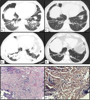 Chest CT scan showing bilateral peripheral consolidation areas in the lower lobes before (A and B) and after (C and D) complete chemotherapy scheme. (E1) Histology showing hyalinized lamellar collagen tissue surrounded by lymphoplasmacytic infiltrates (hematoxylin and eosin, ×200); and (E2) negative Congo red stain (CR, ×200).
