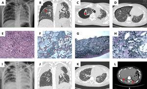 (A) Chest radiograph shows pneumothorax on the right side; High resolution computed tomography (HRCT) coronal (B) and axial (C) show pneumothorax on the right side, bilateral pleurae thickening and subpleural parenchymal consolidation (red arrow); (D) HRCT shows that the fibrosis and consolidation are scanty of the lower lobes. (E) Section of pleurae biopsy (H&E stain ×100) shows the thickened pleura; (F) Masson's trichrome stain (×100) demonstrates dense fibrosis in subpleural lung parenchyma; (G) Elastic Van Gieson (EVG) stain (×100) highlights excessive elastin fibers deposition in pleura; (H) EVG stain (×100) reveals subpleural lung parenchyma. (I) Chest radiograph shows peumothorax on the left side; (J) HRCT coronal plane shows progressive bilateral pleurae thickening; (K) HRCT axial plane exhibits increasing linear and patchy opacities in the lower lobe; (L) HRCT exhibits bilateral pleural effusion (red arrow).