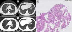 Imaging evolution and histology of Organizing Pneumonia secondary to Varicella-Zoster infection. Thoracic computed tomography (CT). A) One year after varicella-zoster infection showing a micronodular pattern with mostly calcified nodules. In the lower right lobe, a dense 19 mm nodule with ground-glass pattern and, juxtaposed to this, other two calcified nodules. Growth of the previously reported lesion in the lower-left lobe, measuring 21 mm (arrow). CT guided biopsy of the lower left lobe lesion. B) Anatomopathological exam showing focal lesions of organizing pneumonia with foamy macrophages in intralveolar localization. Thoracic CT. C) One year after corticosteroid treatment maintaining micronodular pattern with calcified nodules, but with complete resolution of the previously described lesions.