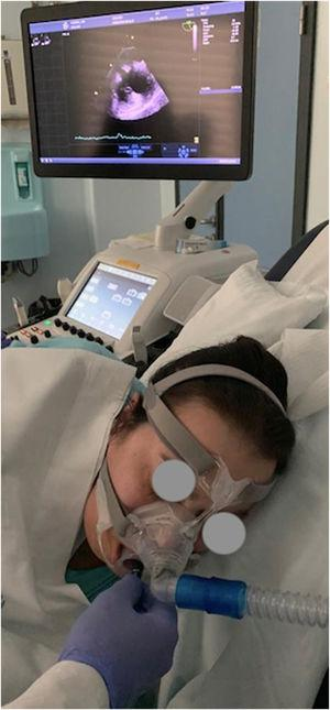 Transoesophageal echocardiogram performance during non-invasive ventilation trough nasal mask.