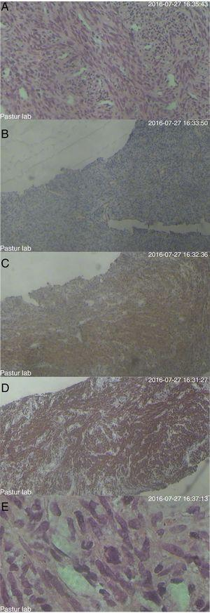 Histology and immunohistochemistry of the tumor. (A) Wright's and Giemsa staining. (B) CD34 staining. (C) Smooth muscle actin (SMA). (D) Desmin. (E) Ki-67 protein.