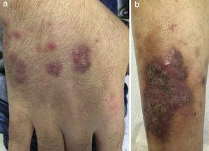 New nodular and erythematous cutaneous lesions consistent with EED.