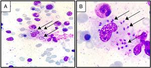 Leishmania amastigotes phagocytosed by macrophages. Black arrows show amastigotes (May-Grünwald stain&#59; (A) magnification: 400×, (B) magnification: 1000×).