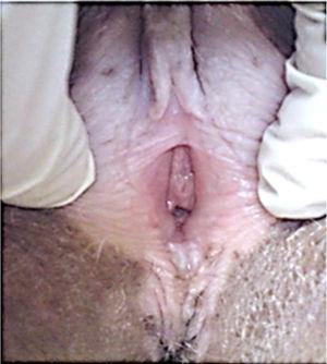 Vulvar lichen sclerosus due to graft-versus-host disease.