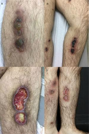 (A) Deep infiltrated lesions with tense blisters on the surface&#59; (B) after starting therapy with acyclovir, lesions became necrotic and ulcerated covered with an adherent black eschar&#59; (C) lesions evolved to extensive deep ulcerated areas&#59; (D) three months after initiating therapy, almost complete healing with residual atrophic scars.