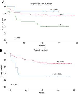 Progression Free Survival and R-IPI score in the total population (A); Progression Free Survival stratification according to Ki67 proliferative index ≥ or < than 95% (B).