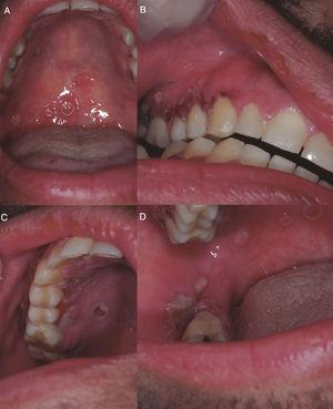 (A) Ulcers with irregular and raised borders on the soft palate. (B) Ulcers with irregular and raised borders on gingival margin and areas of erythema and increased gingival volume of fibrous consistency with areas of necrosis. (1) Ulcers with irregular and raised borders on hard palate and gingival margin. (D) Ulcers with irregular and raised borders on the right cheek mucosa.