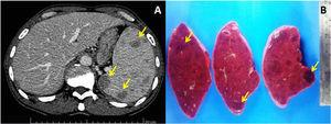 (A) Contrast-enhanced abdominal computed tomography scan (axial view), revealing multiple hypoattenuating nodules in spleen (arrows). (B) Cut surfaces of resected spleen showing multiple dark-red nodules (arrows) and splenomegaly (weight 619g).