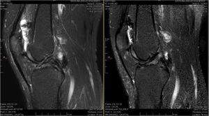 Magnetic resonance imaging of a 33-year-old patient with haemophilic arthropathy of the knee. The T2-weighted SPIR (Spectral Presaturation with Inversion Recovery) image shows highly enhanced joint effusion. The hypertrophic synovium with black hemosiderin deposits is irregular with variable composition and different thicknesses along the articular surface (arrows). Adjacent soft tissues appear light grey (left). Magnetic resonance imaging obtained six months after treatment shows that the size of the synovium (arrow) and extent of joint effusion have both been reduced (right).