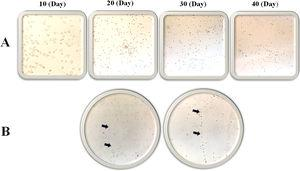 The morphology of isolated cells cultured in DMEM (1g/L of d-glucose) to evaluate the MSC growth (during 40 days) (A) and precursor endothelial cell isolation from the LRFs (arrow shows resemblance to vasculogenesis formation) (B).