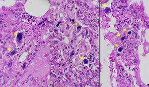Multiple megakaryocytes (arrows) identified in the pulmonary circulation (Hematoxylin and Eosin staining, 400×magnification).