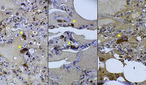 Immunohistochemistry analysis for confirmation of megakaryocytes (arrows) in lungs. Factor VIII-related antigen stain. CD61 immunohistochemistry was also positive on megakaryocytes (not shown). 400×magnification.