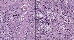 Left image: In the lower-left area is observed the presence of malignant epithelial cells that infiltrate through the smooth muscle bundles, intermingled with chronic inflammatory cells; in the center of the image there is mitosis (Arrow, original magnification to 40X). Right image: There are residual glands which are displayed on the left side of the image (asterisk).