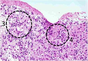 Liver biopsy with confluent necrosis (3) and hepatocytes with rosetoid appearance (4).