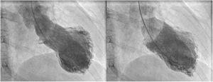 Left ventriculogram exhibited apical akinesia with hypercontractility of basal segments, and moderate left ventricular systolic dysfunction.