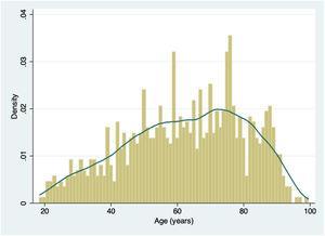 Histogram of age distribution with Kernel density plot.
