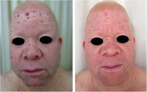 Tratamento dos danos actínicos. Paciente albino com múltiplas queratoses actínicas e lentigos solares tratado com crioterapia.