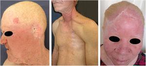 Sequelas do câncer da pele. Pacientes albinos com múltiplas cicatrizes e mutilações por cirurgias prévias para excisão de cânceres da pele.