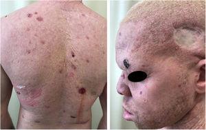 Morbimortalidade associada ao câncer da pele. Paciente albino jovem com múltiplos tumores (CBC e CEC) e cicatrizes cirúrgicas de excisões prévias.