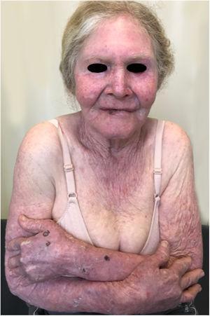 Dano solar acumulativo‐exposição desprotegida. Paciente albina idosa com múltiplos danos actínicos em áreas fotoexpostas. Histórico de carcinoma basocelular e carcinoma espinocelular.