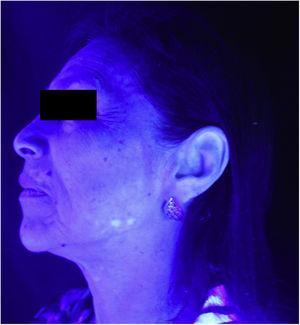 Vitiligo na hemiface esquerda (exame com luz de Wood).