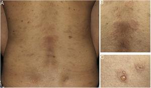 Apresentação clínica do pênfigo herpetiforme. (A) Placas anulares eritematoedematosas e (B) vesículas na borda das lesões, (C) com distribuição herpetiforme.