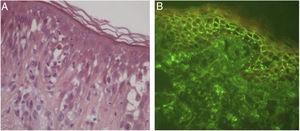 Pênfigo herpetiforme. (A) Espongiose eosinofílica, sem evidência histológica de acantólise (Hematoxilina & eosina, 400×). (B) Imunofluorescência direta com depósito linear, intraepitelial e intercelular de IgG.