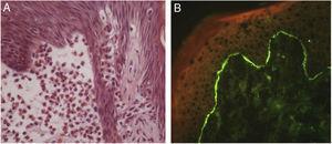 Penfigoide bolhoso. (A) Espongiose eosinofílica focal adjacente à área de clivagem subepidérmica (Hematoxilina & eosina, 400×). (B) Imunofluorescência direta com depósito linear de IgG na zona da membrana basal.