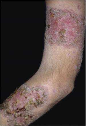 PG vegetante em paciente com doença de Behçet.