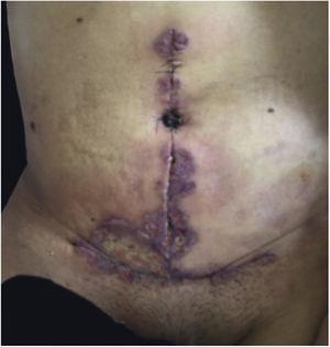 PG ulcerativo após abdominoplastia.